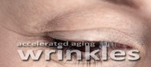 Sun damage in early life leads to aging wrinkles at a premature rate.