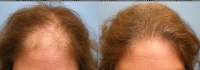 Advance Female Pattern Baldness successfully treated by Parsa Mohebi, MD through FUT hair transplant surgery.