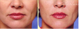 Restalyne is one of 3 popular dermal fillers