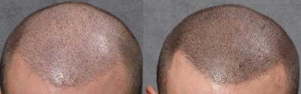 Scalp Micro Pigmentation is used for hair loss treatment.