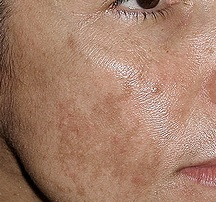 USHR Spa team discusses Melasma